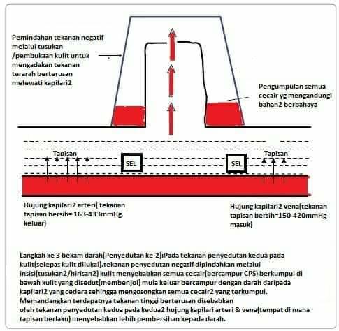 Teori Taibah Dalam Terapi Bekam Darah